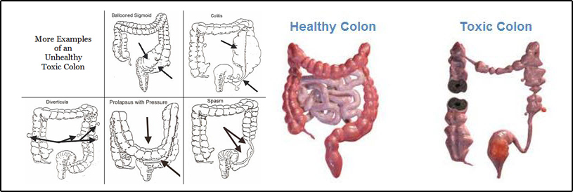 Colon Hydrotherapy Nethersprings
