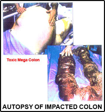 Impacted-Mega-Colon
